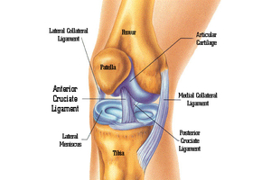 ACL reconstruction in pune and pcmc