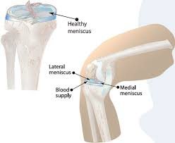 meniscus tear treatment in pune and pcmc