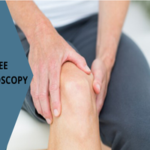 Knee Arthroscopy Surgeon Pune