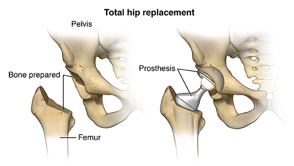 Total hip replacement in pune and pcmc