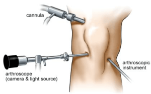 Arthroscopic knee surgery in pune and pcmc