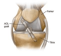 knee Arthoscopy in pune and pcmc