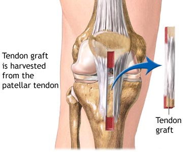 acl surgery in pune and pcmc