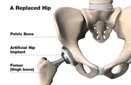 Hip Replacement Surgery in pune and pcmc