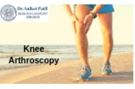 Knee Arthroscopy Surgeon Pune and Pimpri Chinchwad (PCMC)
