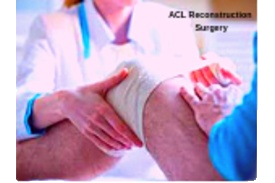 Acl reconstruction surgery in pune and pcmc