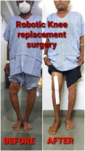 robotic knee replacement surgery in Pune